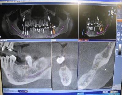 最先端CT画像診断装置 シロナ社ガリレオスのイメージ