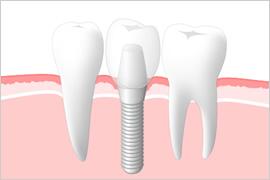 STEP.5 人口の歯(セラミックの歯)を取り付けます。 のイメージ