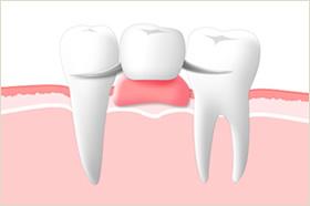 総入れ歯のイメージ