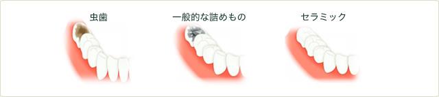 虫歯 一般的な詰めもの セラミックのイメージ