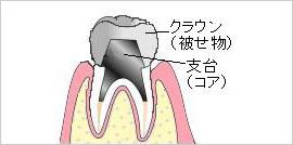 歯台築造(コア)のイメージ